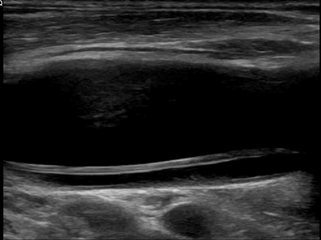 A common carotid artery dissection ultrasound