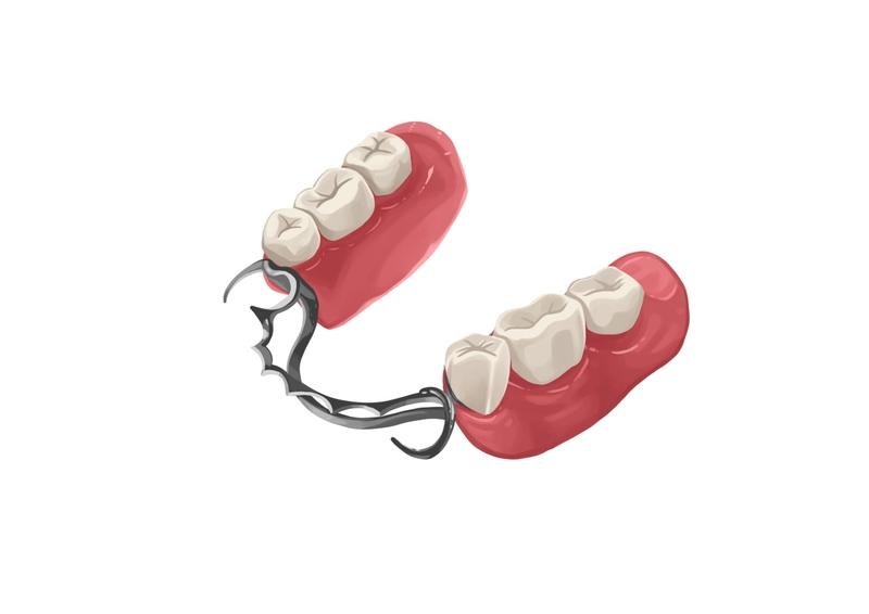 Metal partial denture