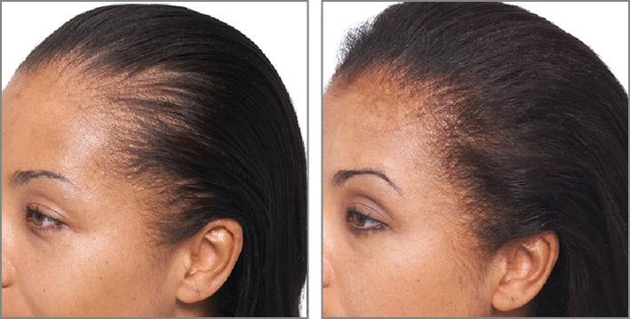 Keranique Hair Regrowth Treatment Review