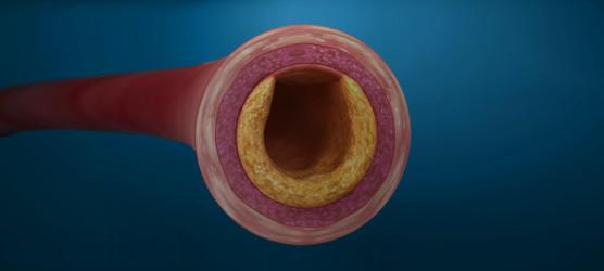 Avem soluții pentru arterele blocate – Trei metode de dezobstrucție arterială la ARES