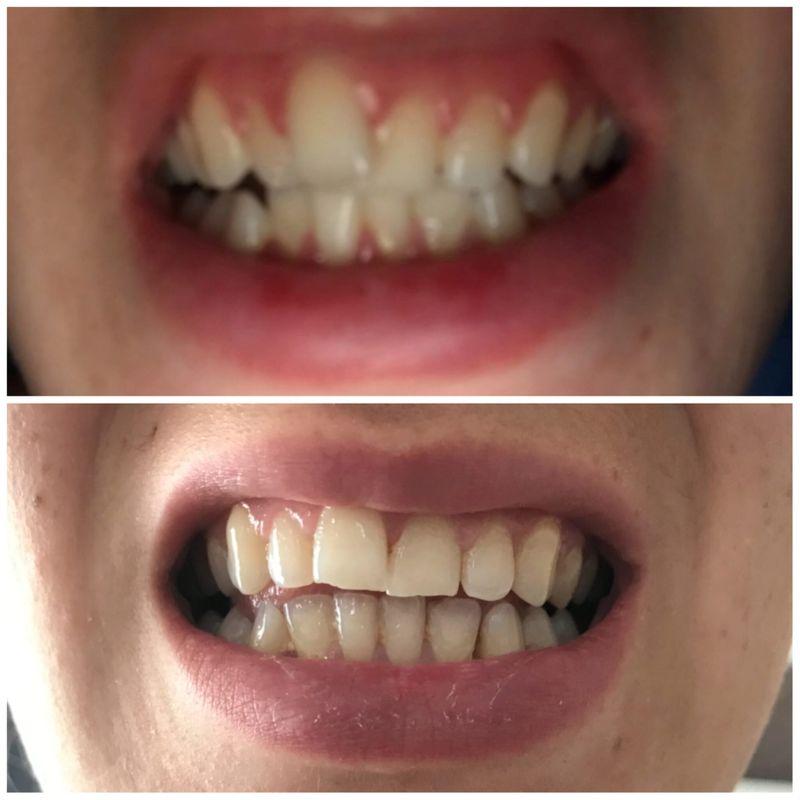 Toni's smile transformation