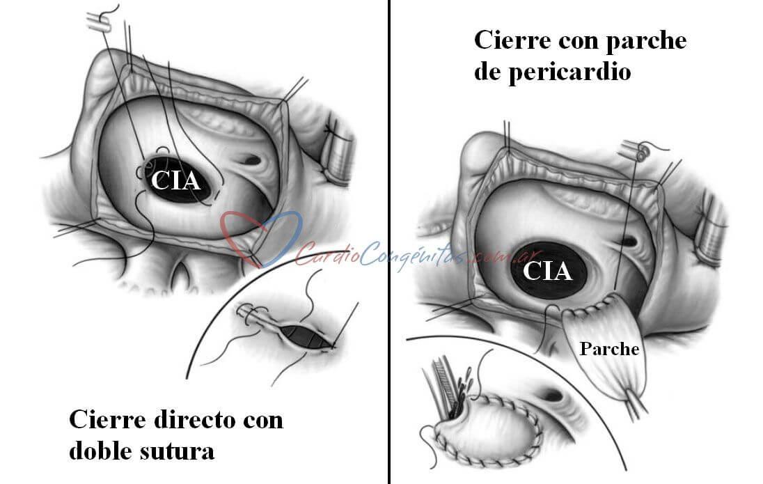 Cierre-de-CIA