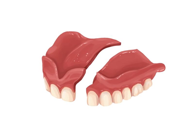 Broken full denture