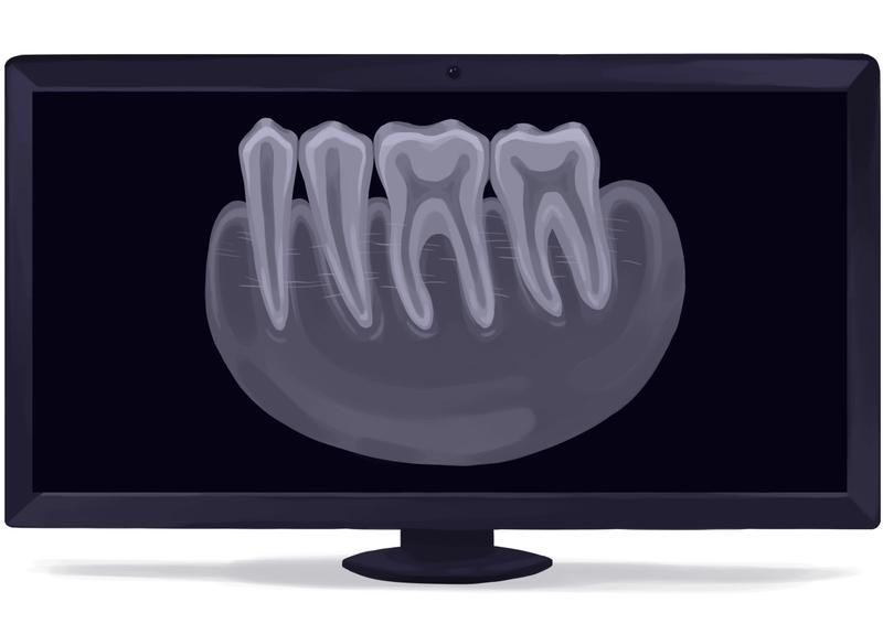 Periapical dental X-ray