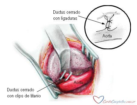 Ductus-cirugia