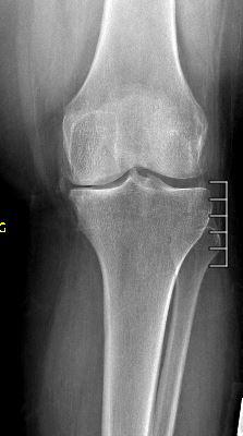 Medial_Compartment_Arthritis.JPG