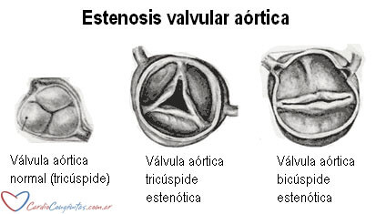 EAo-anatomia