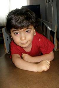 Developmental Delay – Pervasive Developmental Disorder