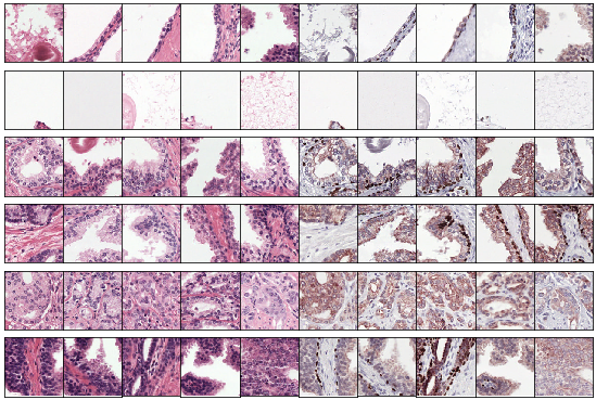 Example clusters. Some clusters capture a class perfectly, e.g. stroma in row 1 and 2 and tumor in row 5. Some clusters look similar but contain both benign epithelium and tumor (row 6).