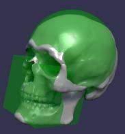 Compound Skull
