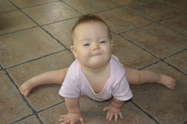 downs-syndrome-trisomy21-sofia-difficulty-moving