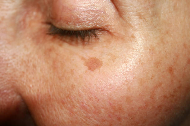 pigmentation reduction treatment