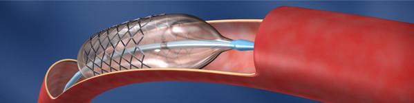 Tratamentul arterelor subclavii | Centrele Ares | Radiologie Interventionala