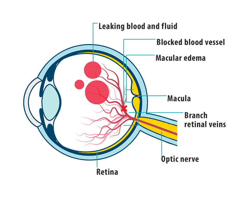 Picture of effects of MEfBRVO on the eye, showing leaking blood and fluid, macular edema, macula, blocked blood vessel, retina, optic nerve, and branch retinal veins.