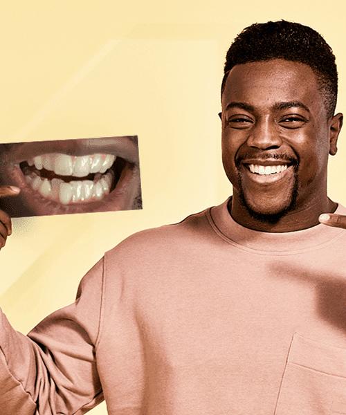 Schiefe Zähne vorher nachher