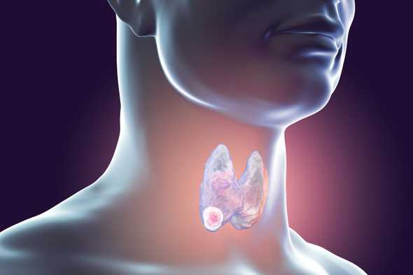 head and neck cancer hnc4