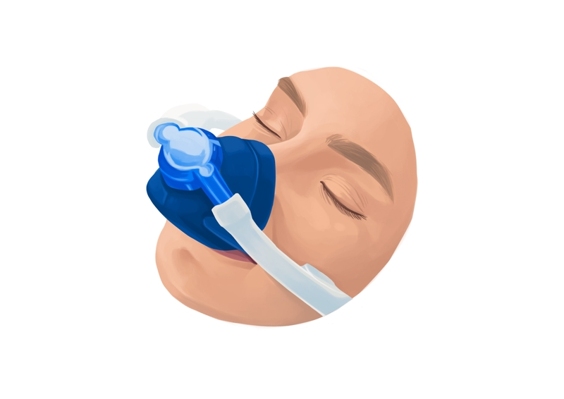 Laughing gas sedation