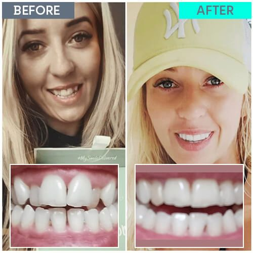 Marta's straight teeth journey