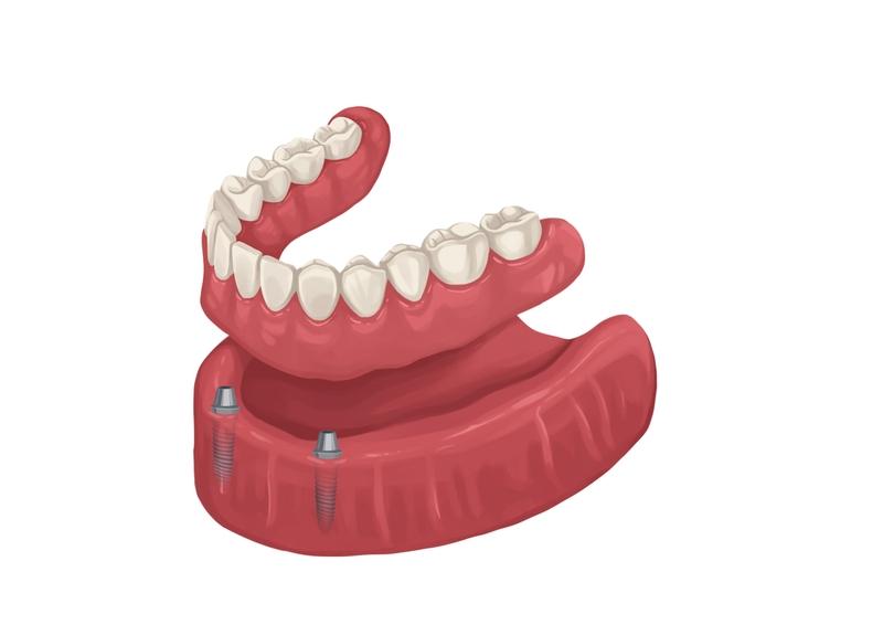 Removable denture implants