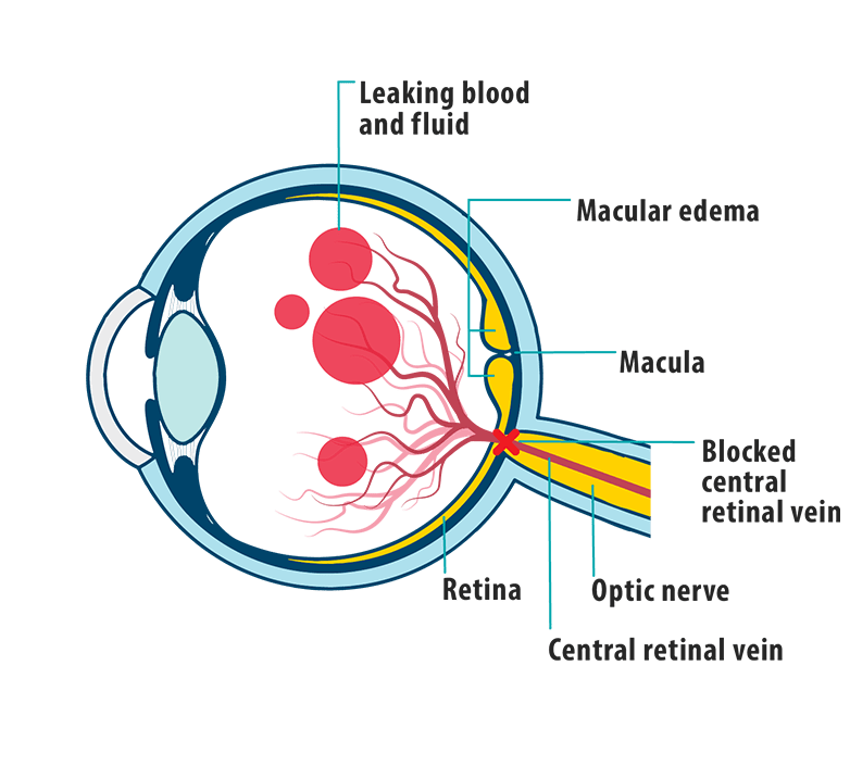 Picture of effects of MEfCRVO on the eye, showing leaking blood and fluid, macular edema, macula, blocked central retinal vein, retina, optic nerve, and central retinal vein.
