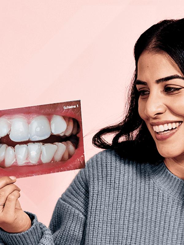 DrSmile Zahnschiene vorher nachher Sinim