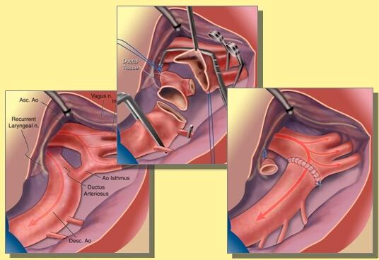 Cirugia-coartacion