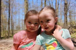 Trisomy 21 Twins0