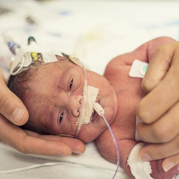 10% of births in the U.S. are premature.