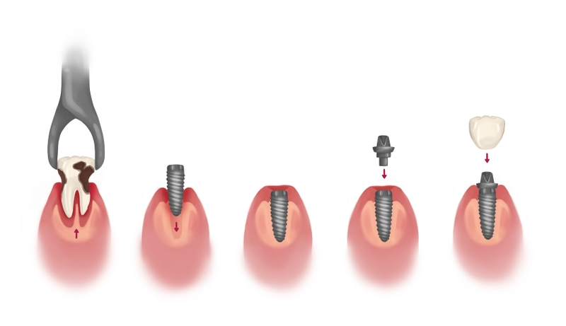 Tooth implant process