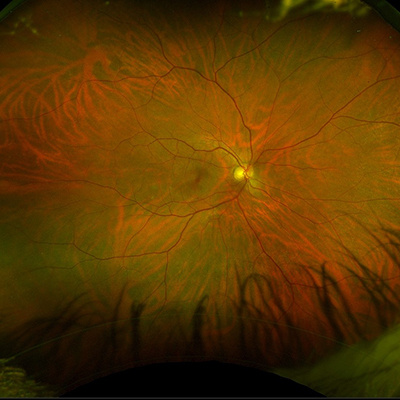 Normal retina of 50 y.o male captured using ultra-wide angle retinal camera (Optos model P200dTx)