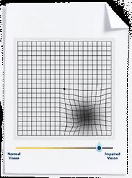 Image of sample Amsler Grid