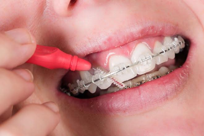 bc3c1516e O segredo de como passar o Fio Dental - Aprenda de forma fácil
