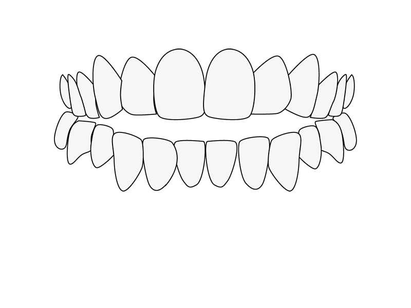 Zahnfehlstellung offener Biss