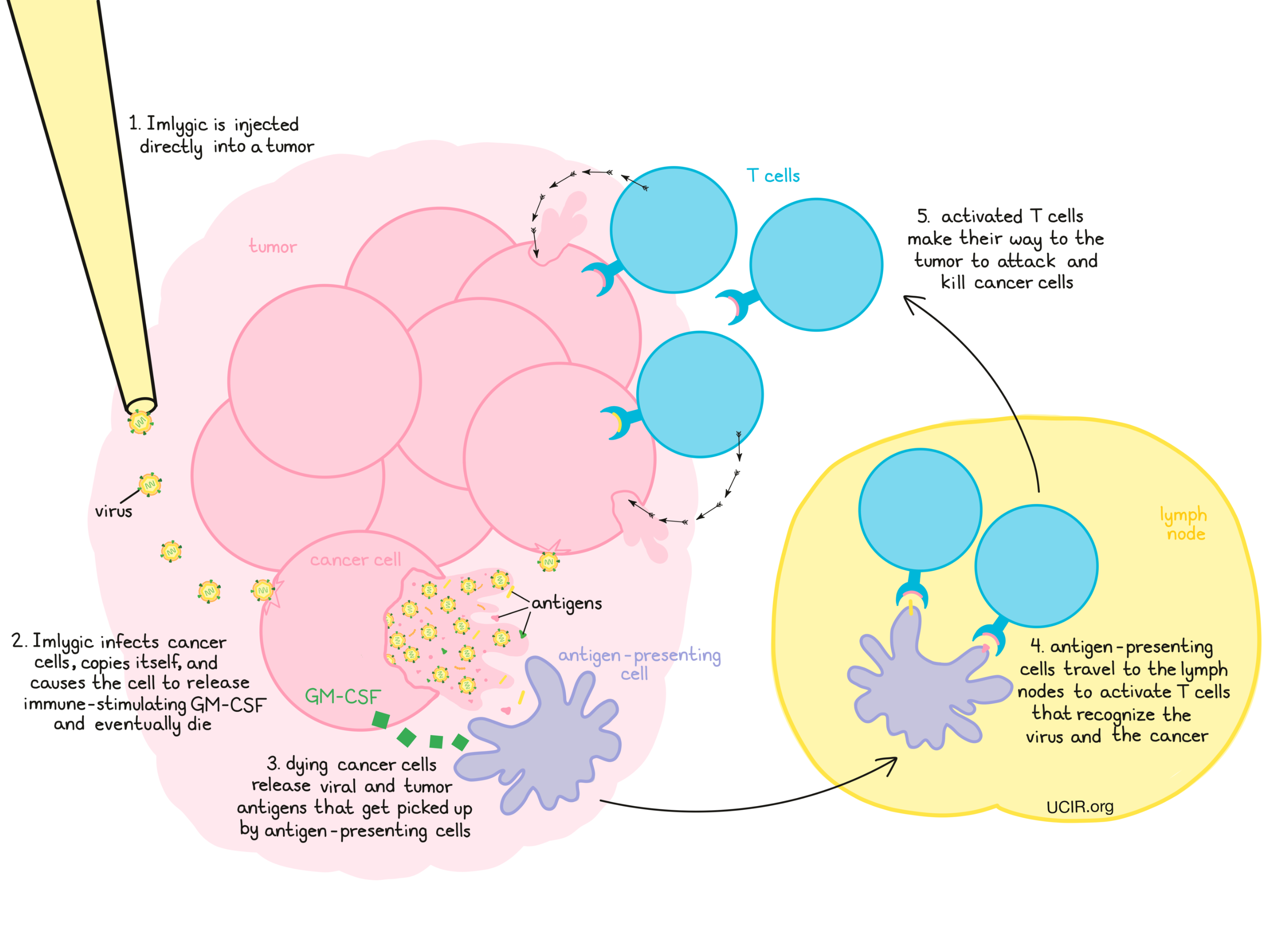 Illustration that shows how Imlygic works