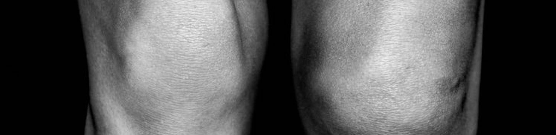 Knee Pain image
