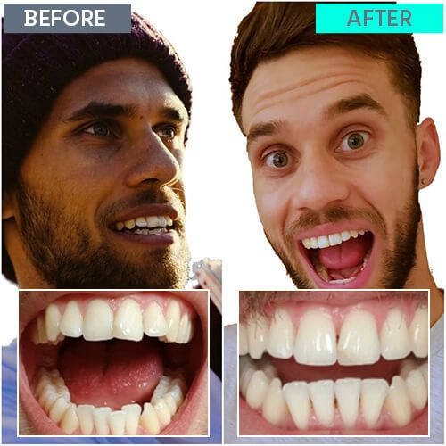 Joe's straight teeth journey