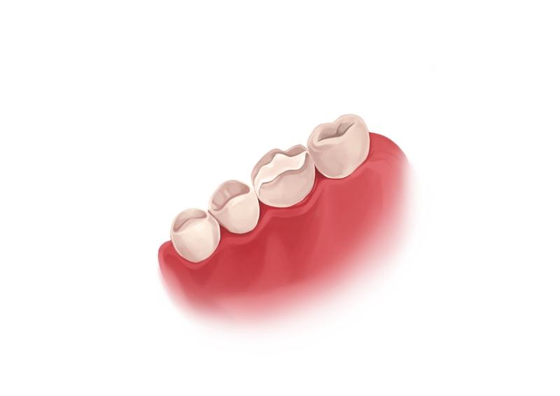 Temporary dental filling