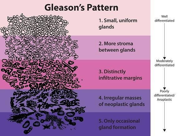 The Gleason scoring system.