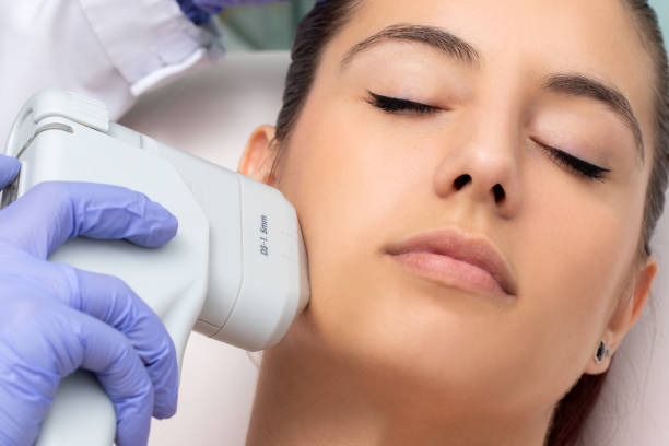 ipl machine tightening skin