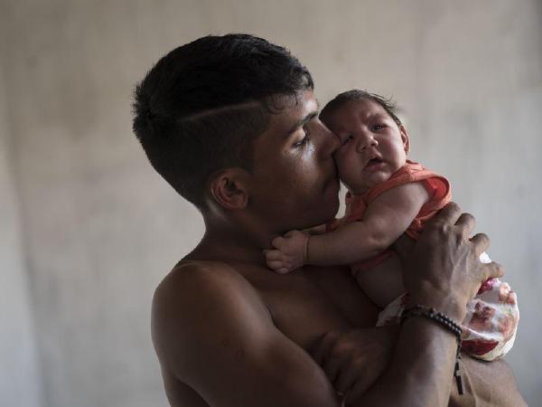 지카감염 임산부 5%가 기형아 출산
