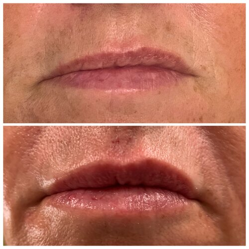Hyaluronic Lip Infusion