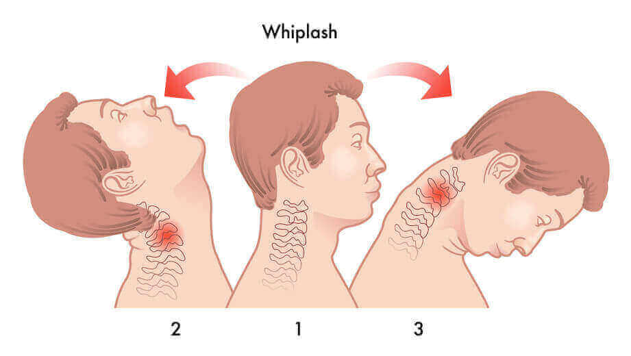 Los Angeles Whiplash Accident Lawyers