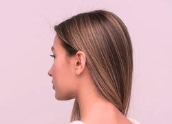 Tipos de caspa: causas y tratamientos para combatirlos - Featured image