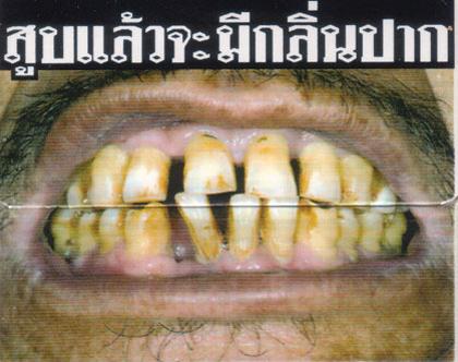 Rauchen ist böse. Und Thailand ist das wohl konsequenteste Land in der Bekämpfung der Raucher ;) Auf den Zigarettenschachteln stehen nicht die in Europa beliebten Schwarzen Sätze sondern gleich unterhaltsame Bilder, was alles so passieren kann, wenn man raucht.  Heute mein persönlicher Favorit: Vermutlich soll das Gebiss von Verfärbungen durch Nikotin sprechen. Wenn man allerdings bedenkt, dass Teethwhitening hier relativ preiswert zu bekommen ist (ich werde berichten), dann greift das Argument leider nicht.  Wenn man übrigens die Klappenposition der Schachtel betrachtet, kann man sich schon denken, welchen Spass man mit einer in das Klappengebiss gesteckten Zigarette haben kann. Wirklich preiswerte Unterhaltung.