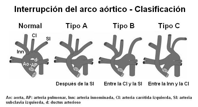 IAA-clasif