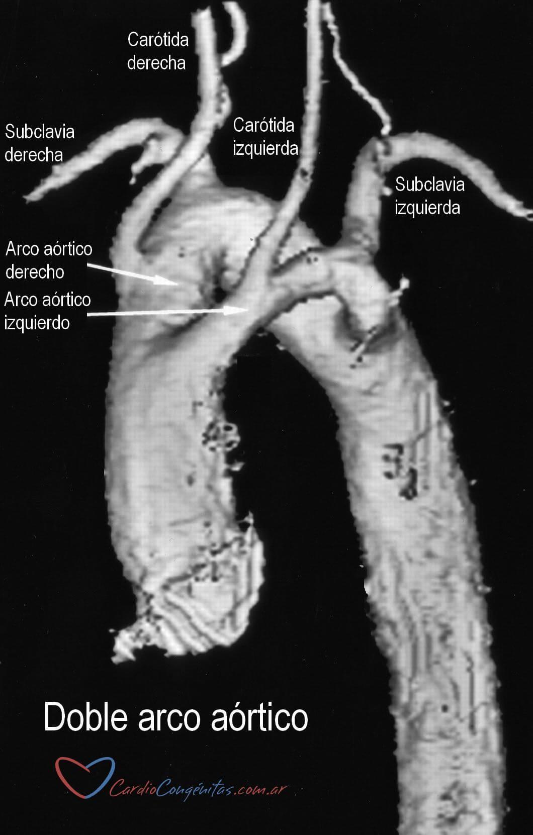 RMN-doble-arco