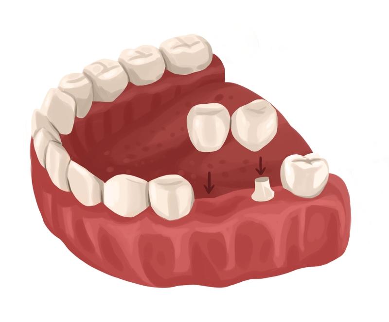 Cantilever tooth bridge