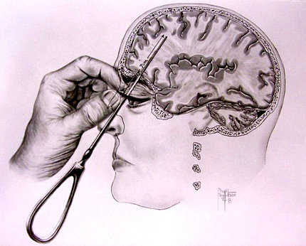 A drawing from Dr. Walter Freeman's book showing his lobotomy procedure