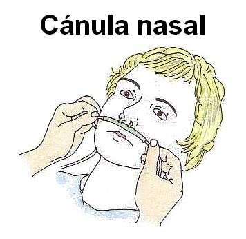 Canula-nasal