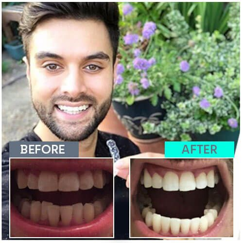 Tony's straight teeth journey